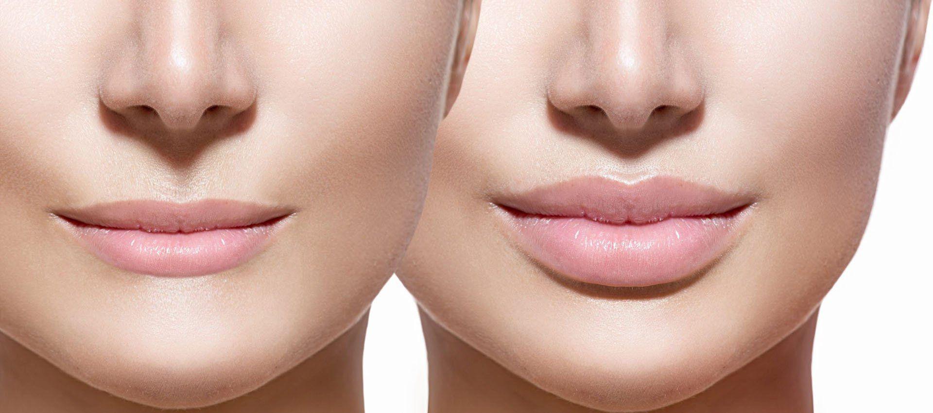 powiększanie ust, wypełnianie ust szczecin, modelowanie ust